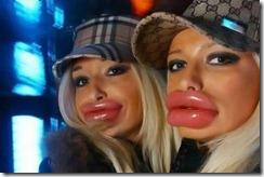 botox-lips