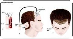 hair_implants