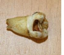 diente podrido de john lennon