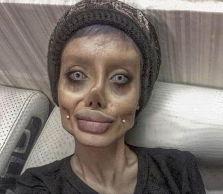 Mujer Quiere Ser Angelina Jolie >> Iraní de 19 años se opera 50 veces para parecerse a Angelina Jolie – El Rastreador de Noticias