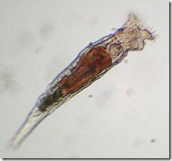 bdelloid rotifer (possibly Philodina acuticornis)