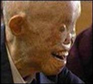sobreviviente de hiroshima